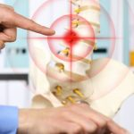 Back Pain is Commonly Caused by Herniated Discs - Do You Know Where Your Pain is Coming From?